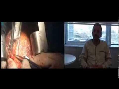 Çalışan Kalpte Bypass 2 – Op.Dr. Mahmut Akyıldız