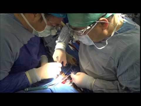 Mahmut Akyıldız – Koltuk Altı Aort Kapak Ameliyatı