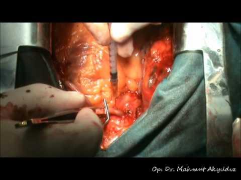 PROXIMAL ANASTOMOZLAR – OP. DR. MAHMUT AKYILDIZ