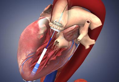Kalp Kapağı Cerrahisi